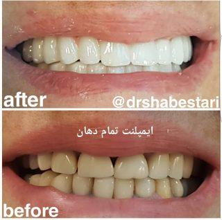نمونه درمان روکش دندان