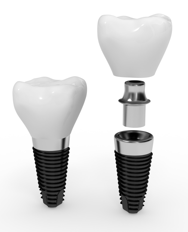 dental_implants_sherman_tx.jpg