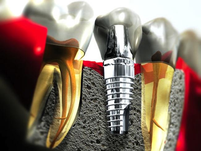 implant-5.jpg