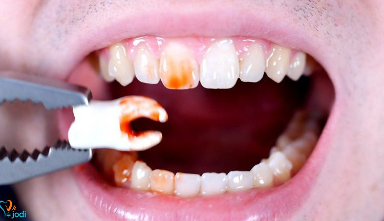pull-tooth-750x432.jpg