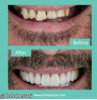 لامینیت دندان چیست