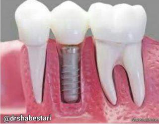 افزایش عمر ایمپلنت دندانی